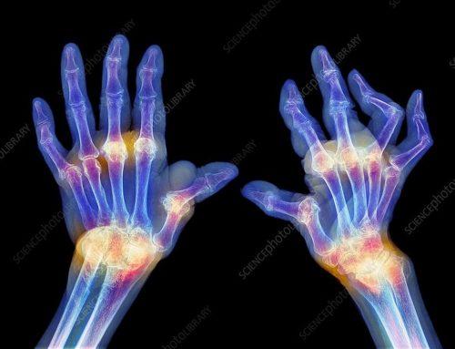 Antinflammatoriska livsmedel som hjälper mot din artros